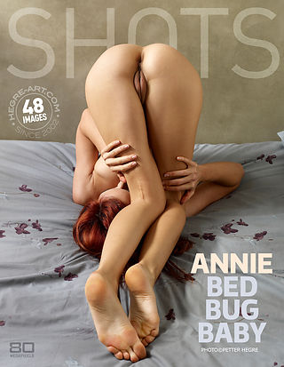 Annie bed bug baby